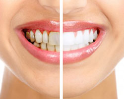dental-cosmetic-surgery-in-india