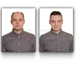 hair-transplant-treatment-india